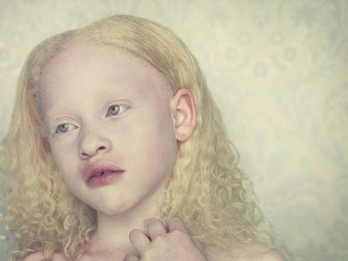 Photo part of Gustavo Lacerda's Albino Series which serves as the inspiration for the main character.